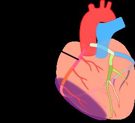 心筋梗塞部位からみる心電図変化