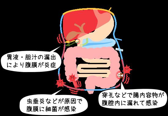 【獣医師監修】猫伝染性腹膜炎(FIP)について 感 …