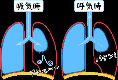 術 看護 癒着 胸膜