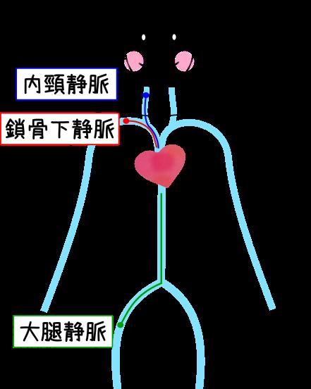 中心静脈栄養とは メリットや介護方法 | 介護の無料 …