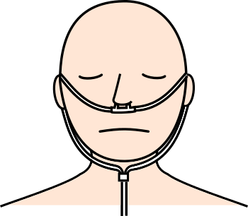 鼻腔カニューレ